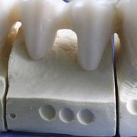 More for Dental Tourism 40