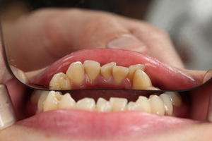 Information about Invisalign 10